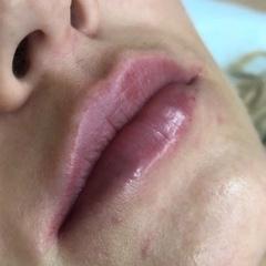 cosmetolog_antonina video