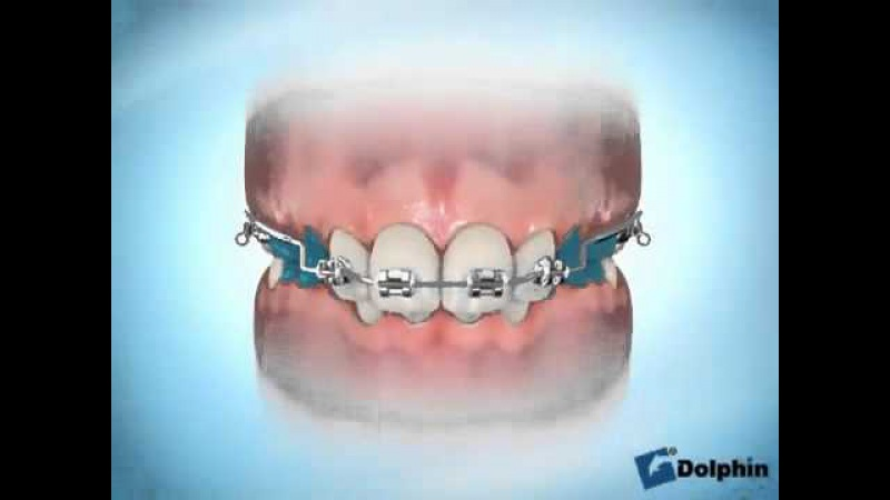 Orthodontic Intrusion Arch Dr Moe Yazdi
