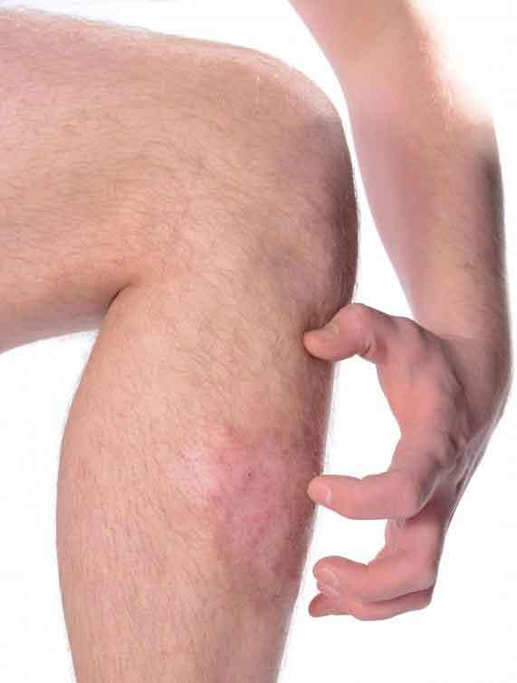 Крем гидрокортизона может помочь в борьбе с зудом и отеком, связанными с укусами клопов