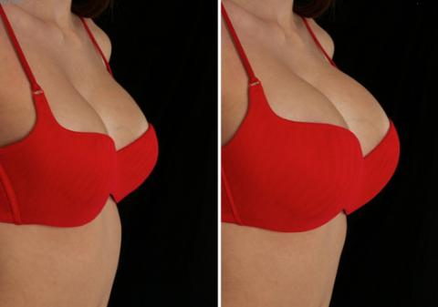 увеличения грудей