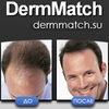 Пудра для волос DermMatch