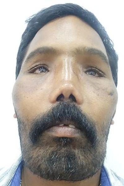 хирурги перекроили внешность мужчины с синдромом львиного лица в возрасте 18 лет у суреша из индии диагностировали синдром львиного лица - редкую аномалию, при которой кости черепа постоянно