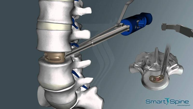 SmartCage L SmartFix Грыжа шейный отдел шея операция межпозвоночная грыжа
