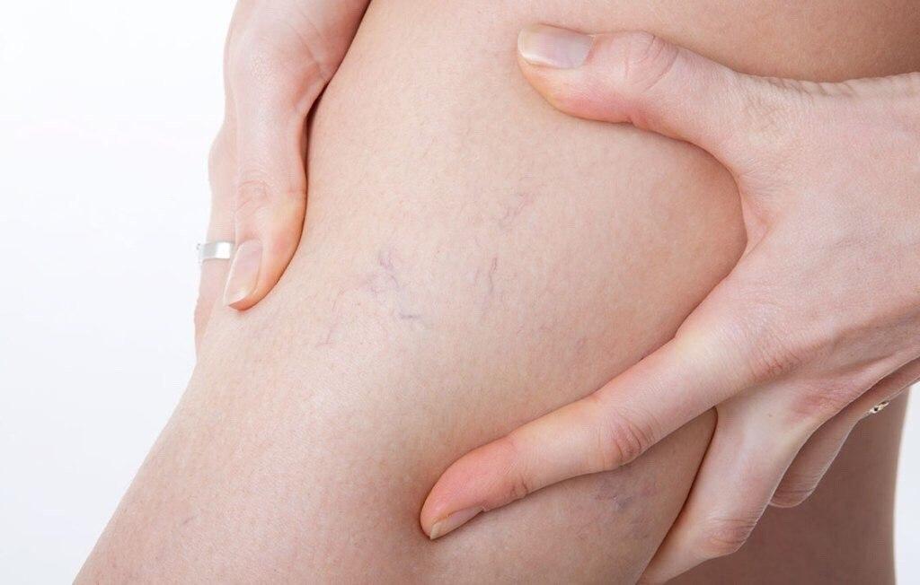 Беременность при варикозной болезни