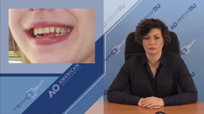 Выбираем брекет систему РАБОТА МЫШЦ Ортодонтия Игнатьева Эмма Юрьевна