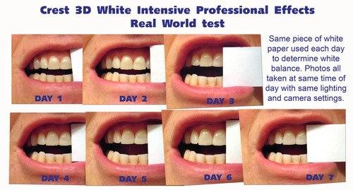 Отбеливаю зубы а они прозрачные а не белые