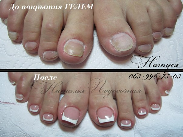 педикюр фото ногтей