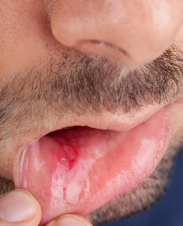 Прополис иногда используется для лечения язвы.