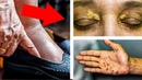 Ваше СЕРДЦЕ на ГРАНИ Если есть Хоть ОДИН из ЭТИХ 10 Симптомов НА КОЖЕ