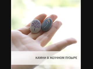 Камни в желчном