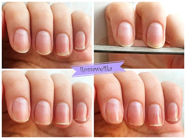 Правильно делать форму ногтей