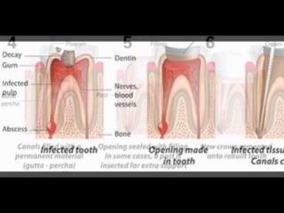 Oakville Root Canal Dentist by dentistryinoakville.ca
