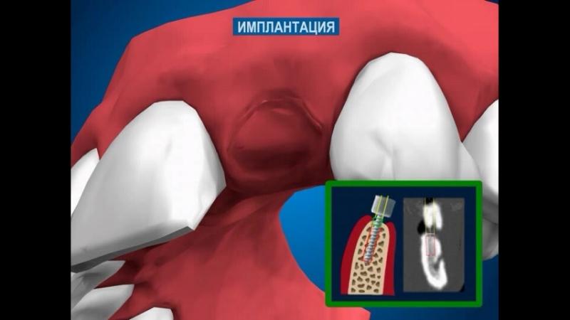 Имплантология и хирургическая стоматология - Имплантация