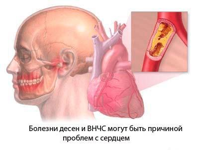 болезни. ... в точно