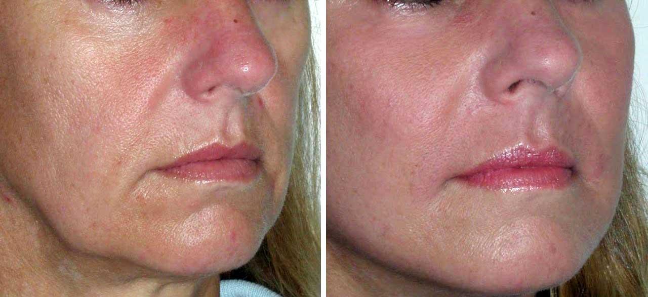 Эти два ингредиента помогут вам избавиться от морщинистой кожи и морщин на лице