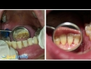 Extreme Dental Cleaning - Just Smile Dental Hygiene Toronto