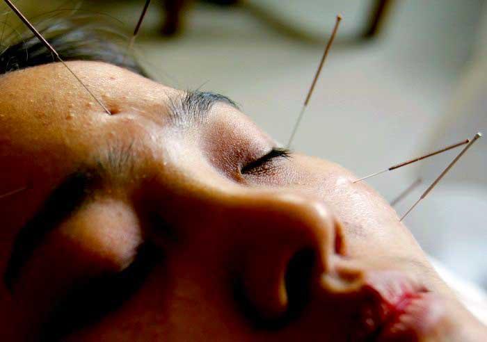 Лечение традиционной китайской медициной