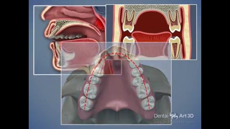 Дыхательные пути и ВНЧС. Ротовое дыхание как причина развития ортодонтических проблем