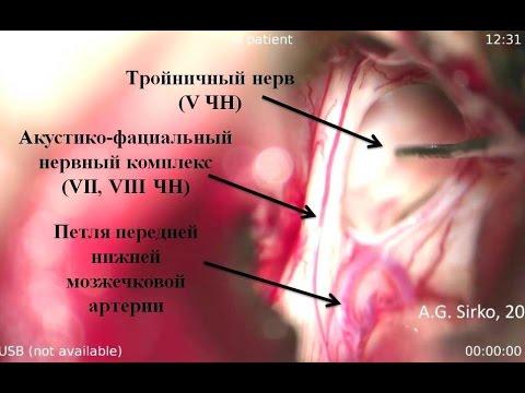 Гигантская хроническая субдуральная гематома правого мостомозжечкового угла Часть II