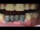 Удаление кисты с поражёнными зубами, восстановление зубного ряда имплантатами и металло-керамическим мостовидным протезом.