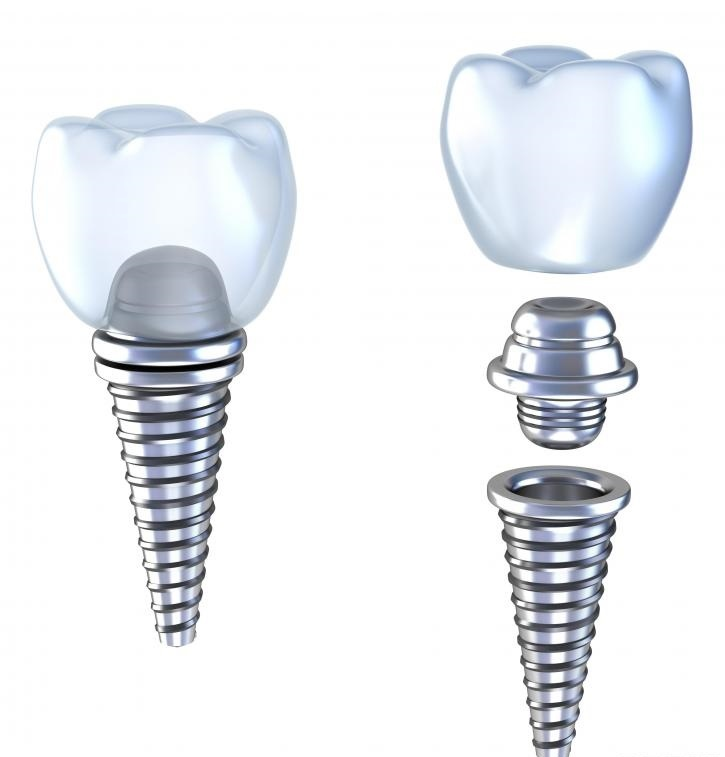 Иллюстрация зубного имплантата с титановым абатментом.