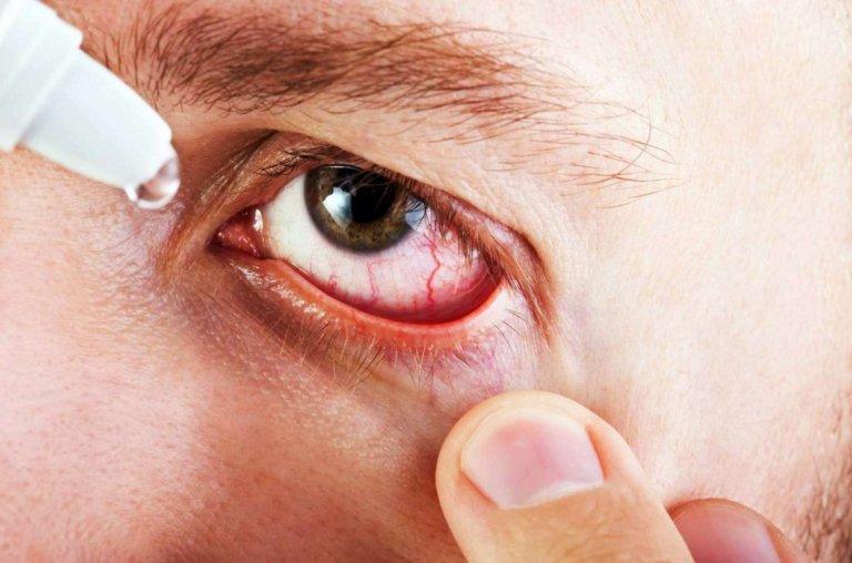 Что такое аденовирусная инфекция?