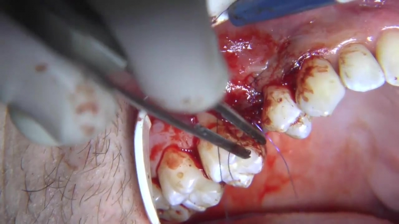 Minimally invasive tissues augmentation without vertical incisions - Dr. Enzo Foti