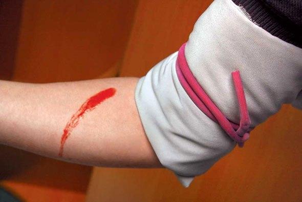 Кровотечение связанные с травмой