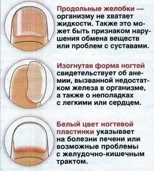 https://pp.vk.me/c635102/v635102522/23d2/6ZciV0UOYGg.jpg