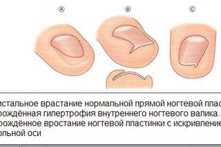 Врожденное чрезмерное развитие (большой размер) внутреннего ногтевого валика.