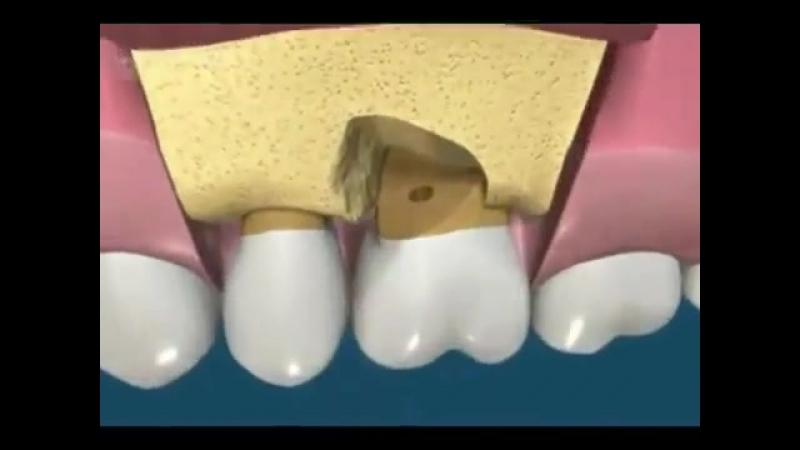 Гемисекция 6 го зуба
