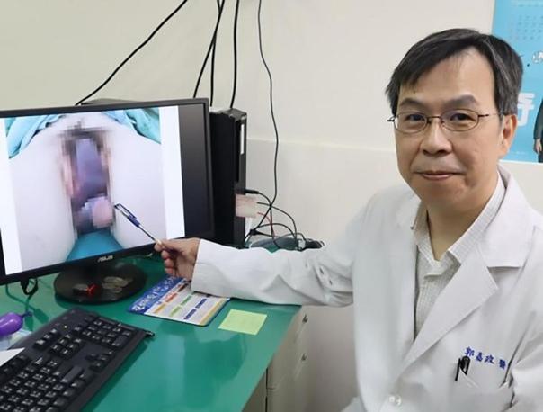 Во время секса пенис пенсионера с громким хрустом сломался в 2 местах 62-летний Ляо из Тайваня поступил в больницу с таким хозяйством, что прифигели даже опытные медики. По словам врачей, член