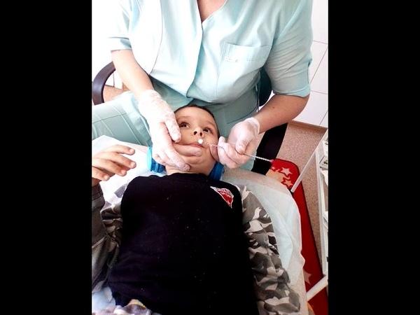 зондовый логопедический массаж языка для не говорящих детей аутизм алалия