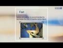 Ultrasound-Guided Axillary Brachial Plexus Block