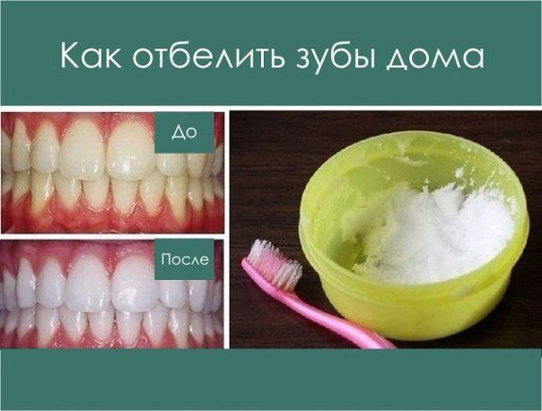 Отбеливаем зубы в домашних условиях за день