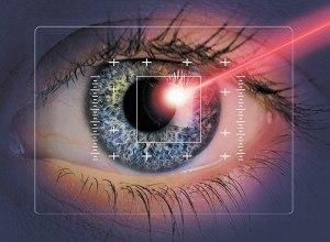 Армия и коррекция зрения