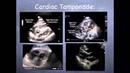 Tutorial Basic echocardiography