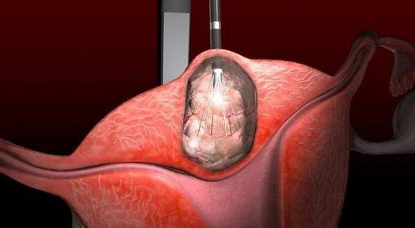 Женщина с миомой матки может испытывать трудности при беременности, что приводит к множественным выкидышам.