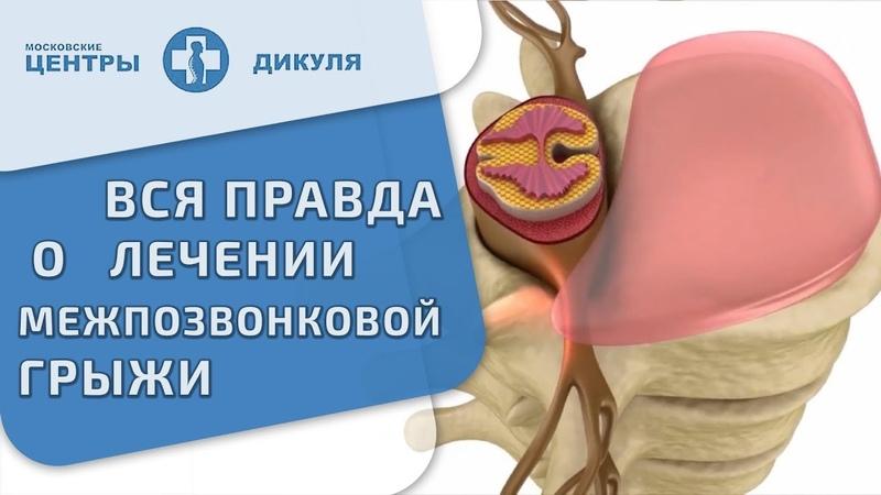 🙌 Методика консервативного лечения грыжи межпозвонковых дисков. Лечение межпозвонковой грыжи. 12
