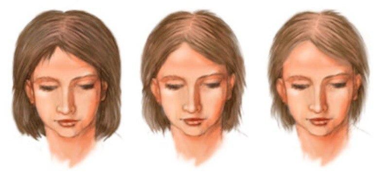 Андрогенная алопеция у женщин - симптомы, причины, отзывы