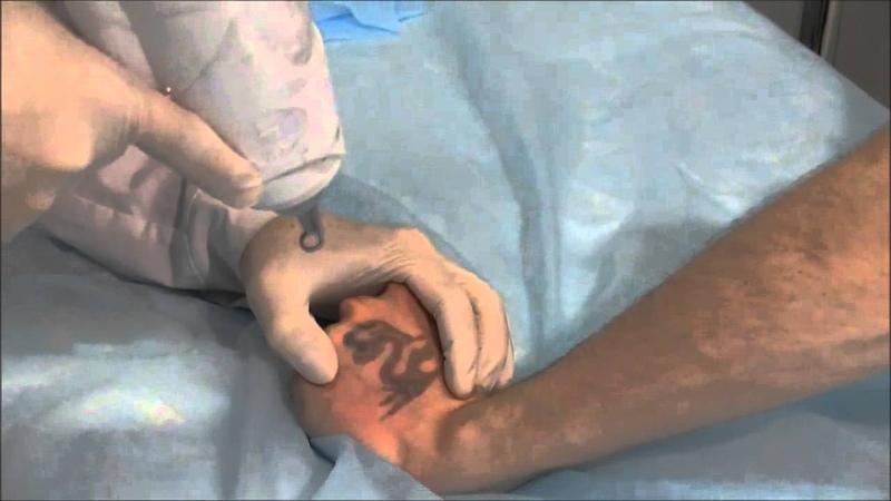 Удаление татуировок, аппарата Nautilus Laser Tattoo Removal