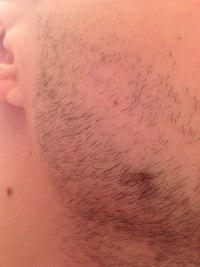 плешь на бороде фото