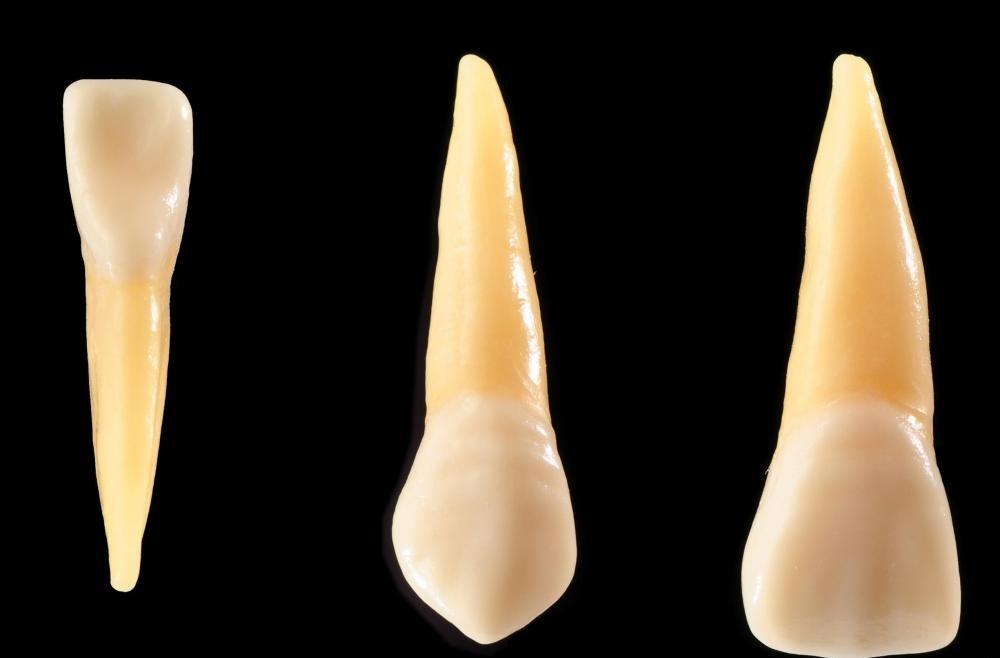 Композит можно использовать для восстановления зуба с помощью мелкого чипа.