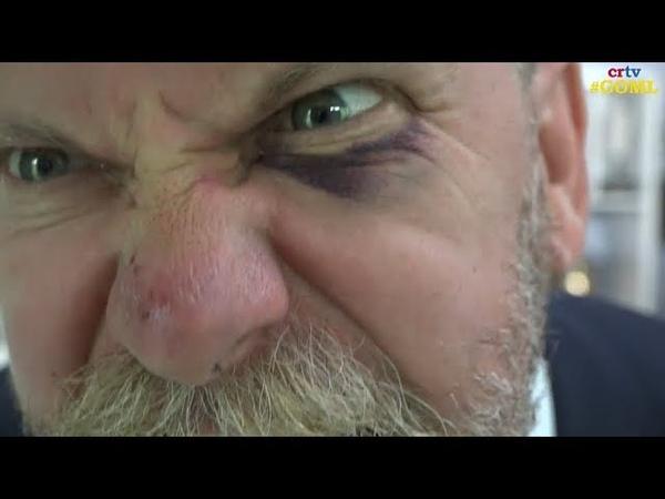 Gavin McInnes explains weekend fistfight resulting black eye