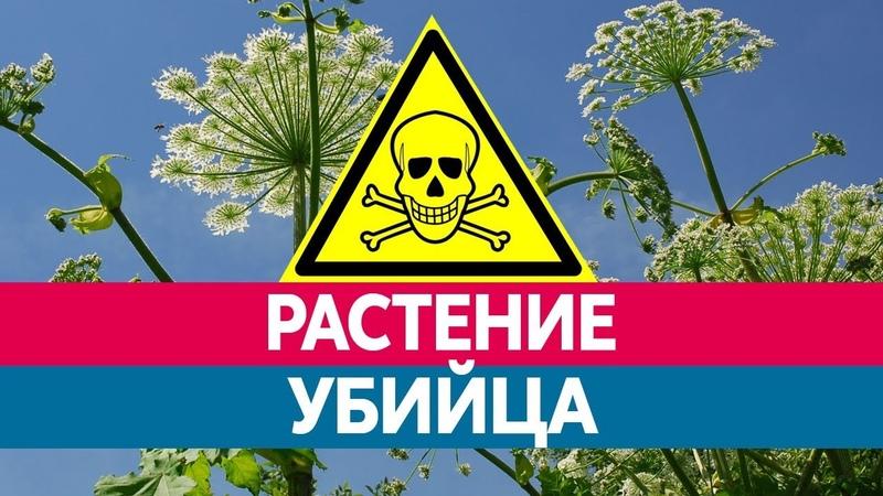 БОРЩЕВИК - РАСТЕНИЕ УБИЙЦА. Ожоги от Борщевика и их последствия!