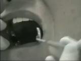 Нейлоновый (гибкий) протез. (360p).mp4