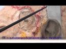 Тройничный нерв и лицевой нерв