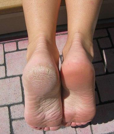 ⚠ Как получить идеальную кожу стоп? Довести ножки до совершенства? ⚠ ✔ Это возможно! Гелевые носочки BRAPHY – великолепное средство для решения известных проблем стоп (трещины, натоптыши)! ✔ Очень простые в применении, они помогут вернуть коже гладкость и мягкость. vk.com/braphy ✔ Всего одна процедура, а продолжительный результат потрясает! ✔ Никаких лишних хлопот – никакой грубой кожи! Это действительно удобно и работает! 🎁 Подарите себе удовольствие ухода за собой. ↪ Подробнее читать в…