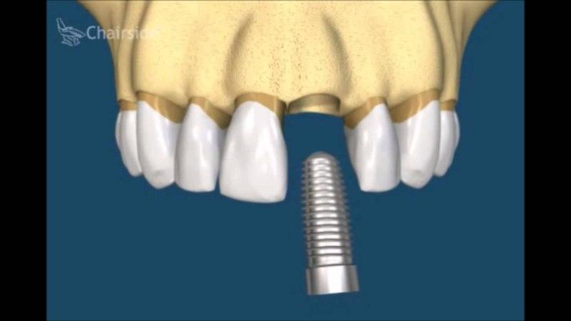 Как лечить разрушенный или некрасивый передний зуб. Ортодотия. Имплантология. Стоматология .