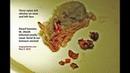 Опухоли кожи у 20 месячного карликового хомяка Часть 3 The 20 month old dwarf hamster's skin tumours grow much bigger over one year Pt 3